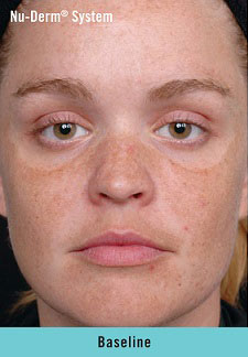 Photo of woman's face with the baseline