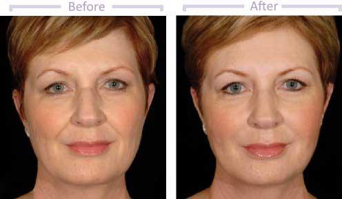 dermal-fillers-before-14days-after