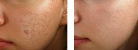dermaroller-treatment (1)
