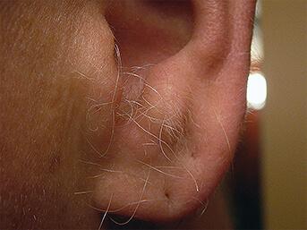 excessive-ear-hair