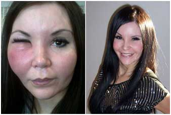 face-fillers-allergic-reaction