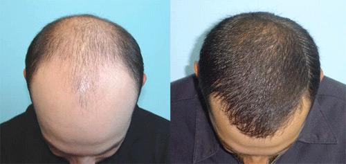 hair-transplant-blog-2