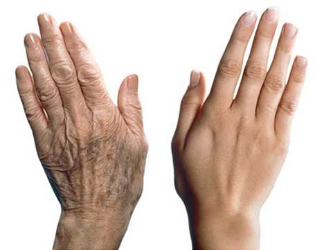 hand-rejuvenation-treatments