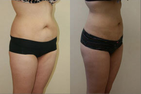 liposuction-before-after