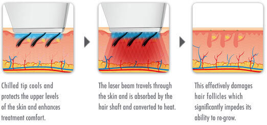 process-for-laser-hair-removal