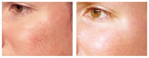 spider-veins-removal