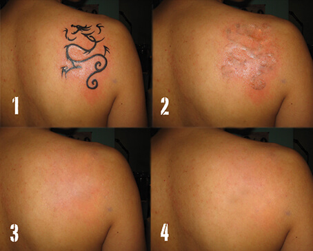 tattoo-removal4