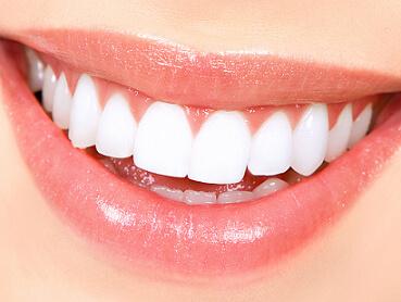 teethwhitening (1)