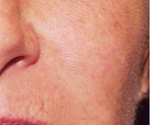 Photo of cheek without spider veins showing after treatment