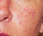 Photo of cheek with spider veins showing before treatment