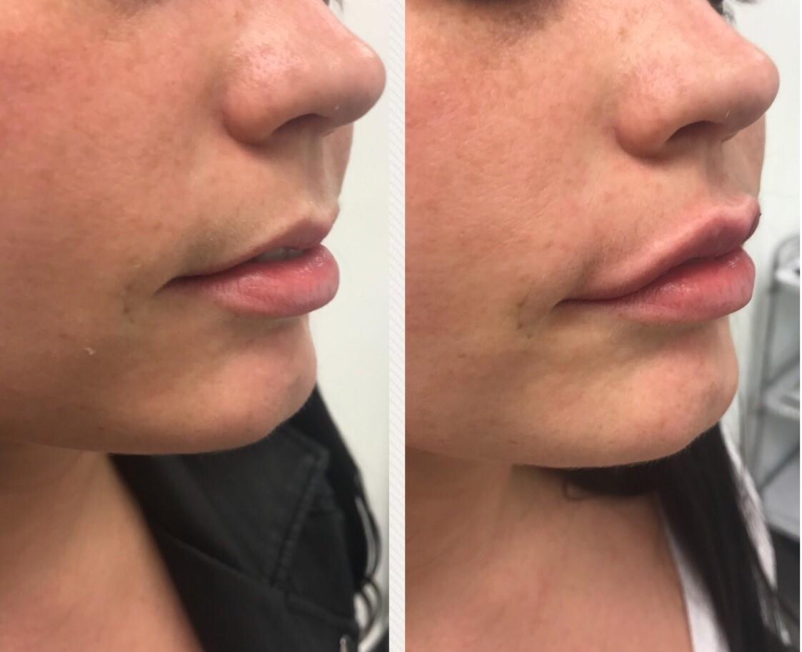 Aesthetics of Essex - Lip Augmentation Essex, Lip Fillers & Lip