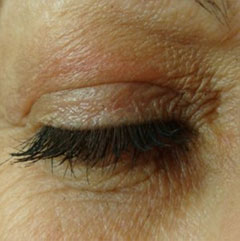 plexr eyelift results after