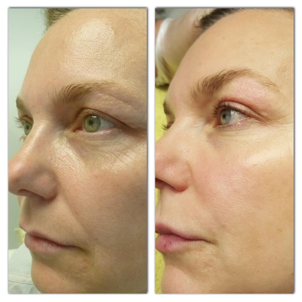 Botox Under Eye Bags Cost Uk