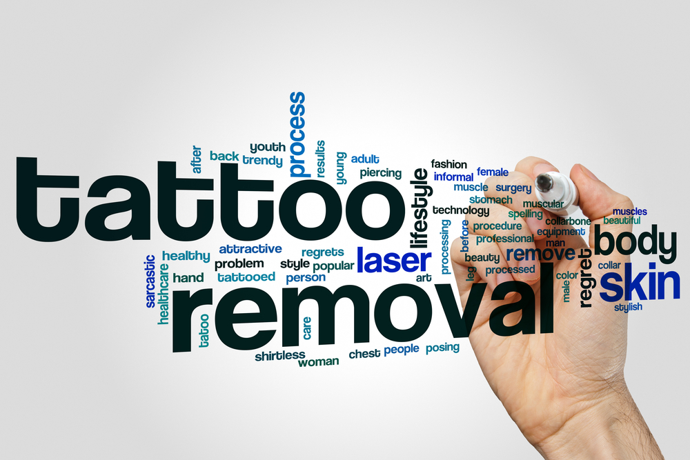 tattooremoval