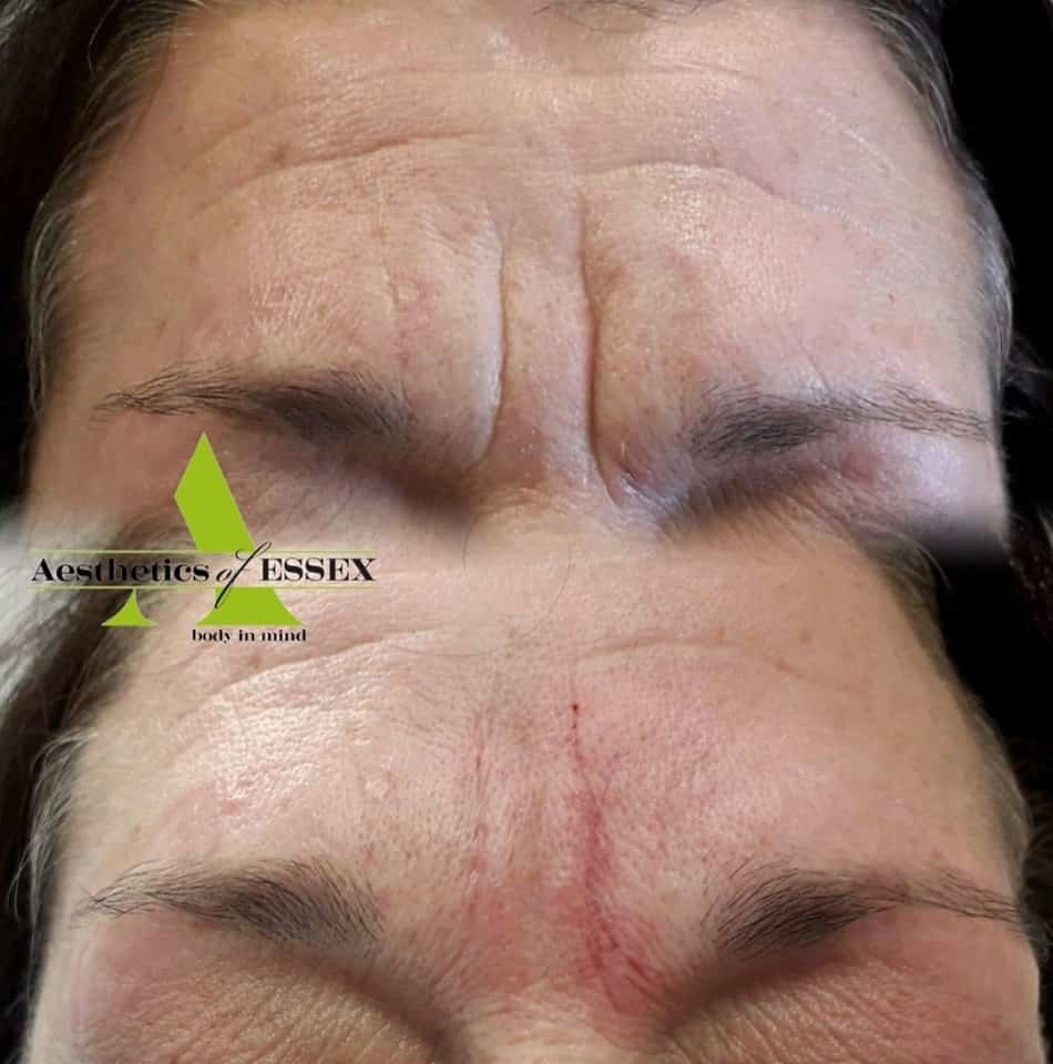 Facial healing filler - Aesthetics of Essex