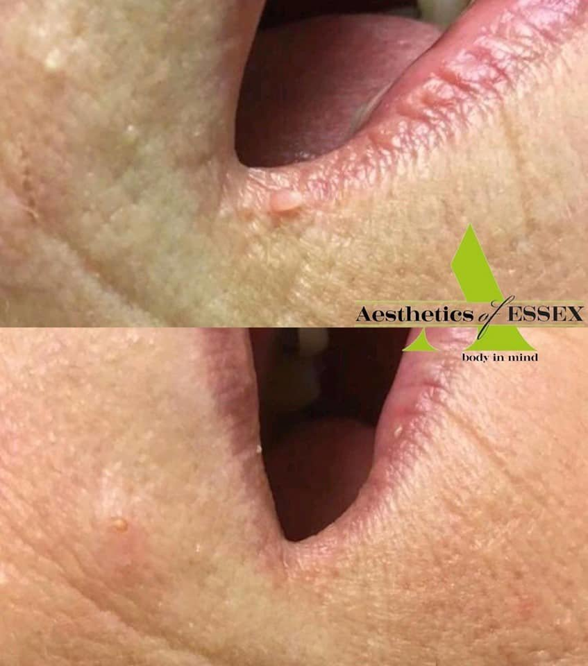 Best Milia removal UK - Aesthetics of Essex
