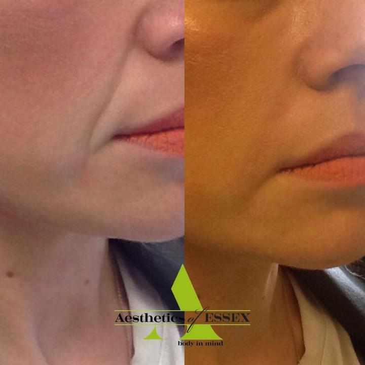 dermal fillers essex - Aesthetics of Essex